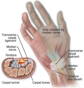 How do you fix carpal tunnel syndrome?